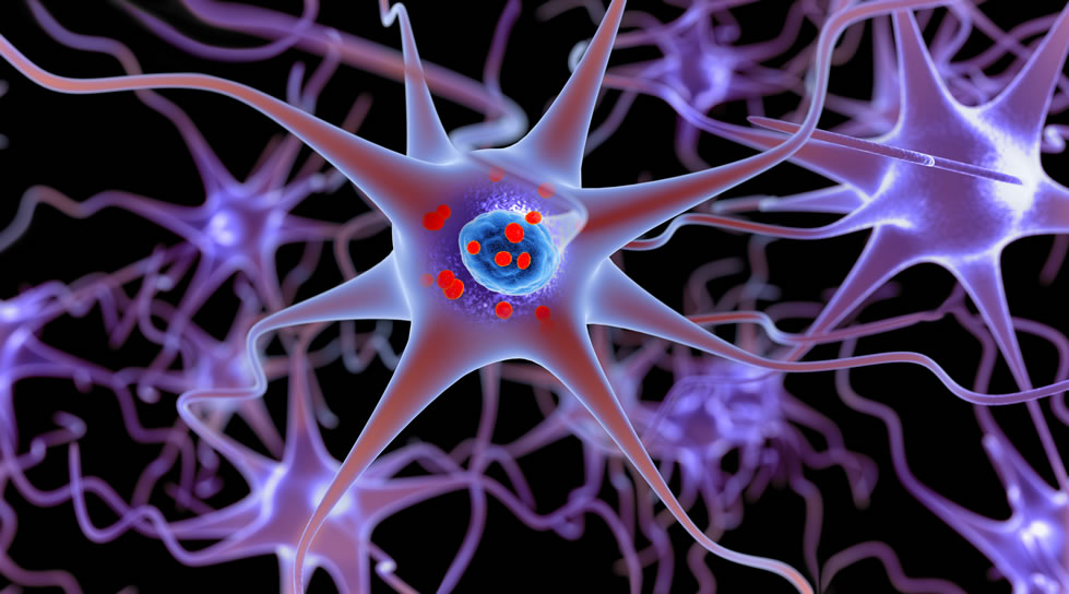 Clumps of a damaged protein called alpha-synuclein build up in the dopamine-producing brain cells of patients with Parkinson's disease.