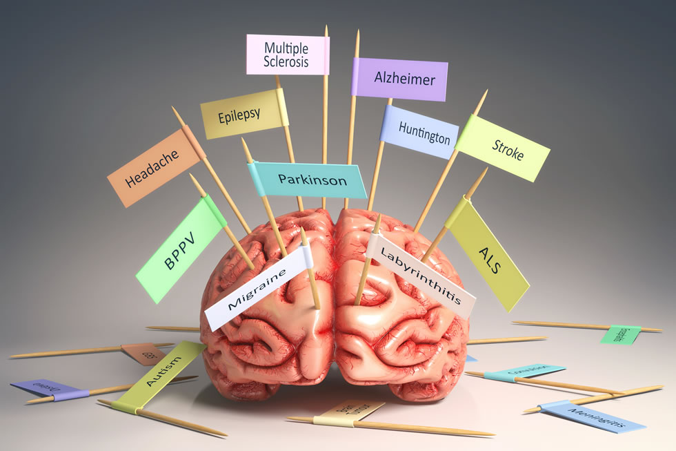 5 condition of brain damage These and other problems reflect significant changes in the brain caused by abuse of methamphetamine which can cause irreversible damage to the brain.