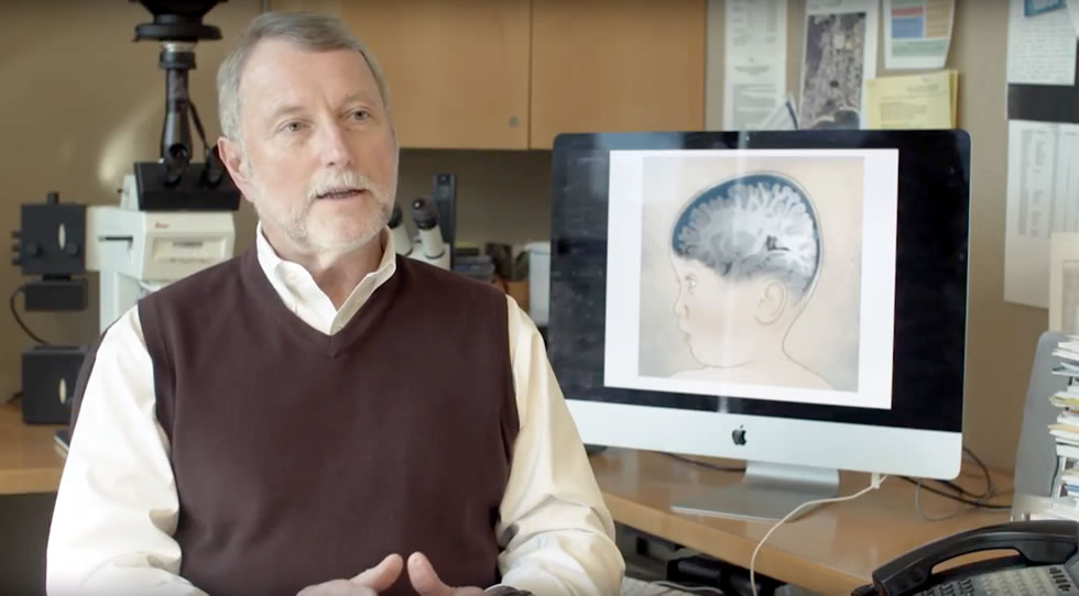 Brain Fluid and a link to autism UC Davis MIND Institute