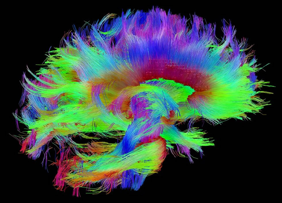 wiring diagram of the brain provides a clearer picture of