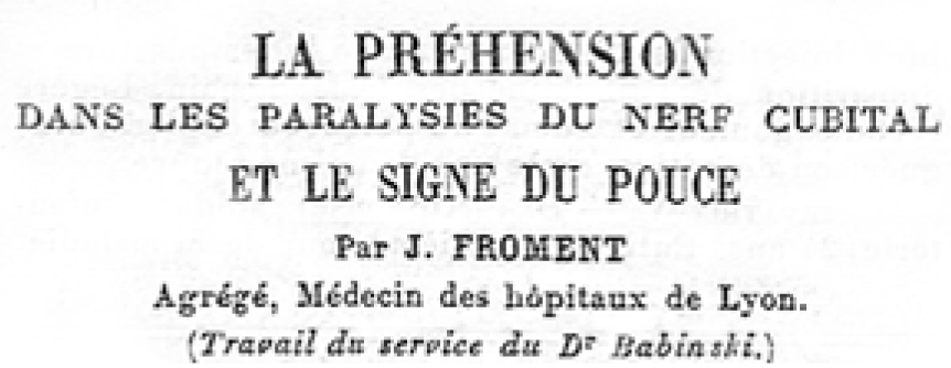 Froment sign (from Presse Médical, Thursday, Oct. 21, 1915)
