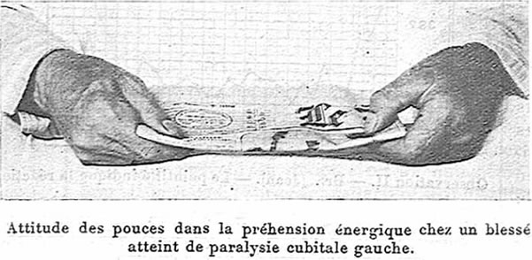 Froment sign (from Presse Médical, Thursday, Oct. 21, 1915).