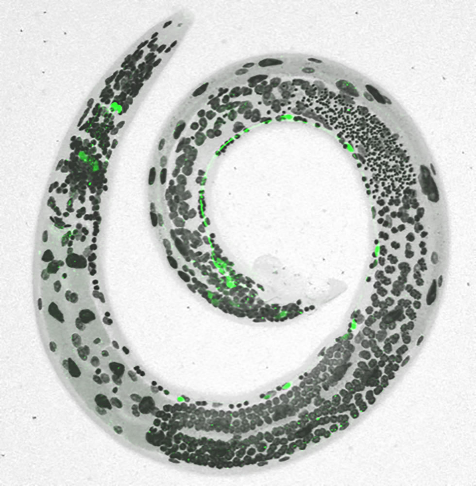 Nerve-wracking stress shapes worm circuits